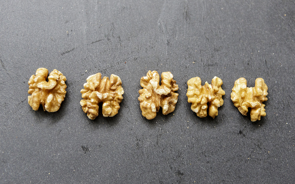 Could Walnuts Prove Beneficial for Prostate Cancer Patients? teaser image